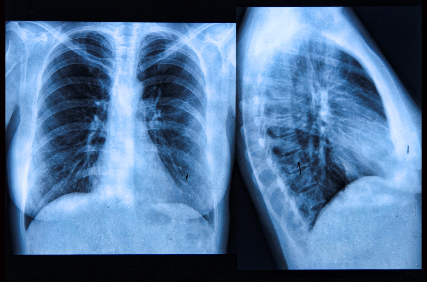 lung cancer trial