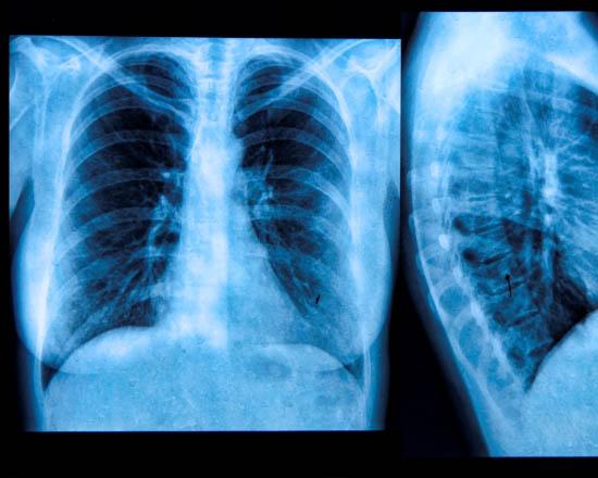 Lung cancer research boosted